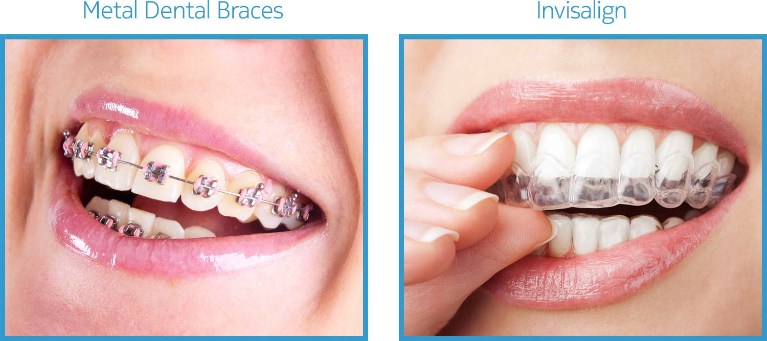 Orthodontics (Metal Braces / Invisalign)