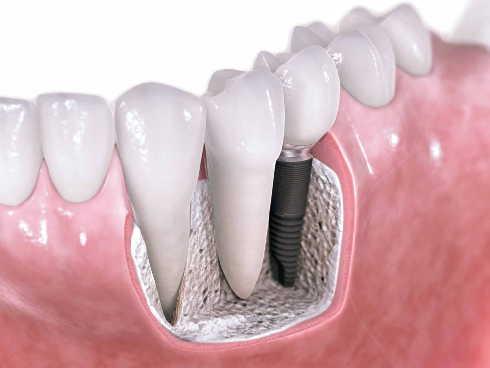 Tooth Implants Philippines